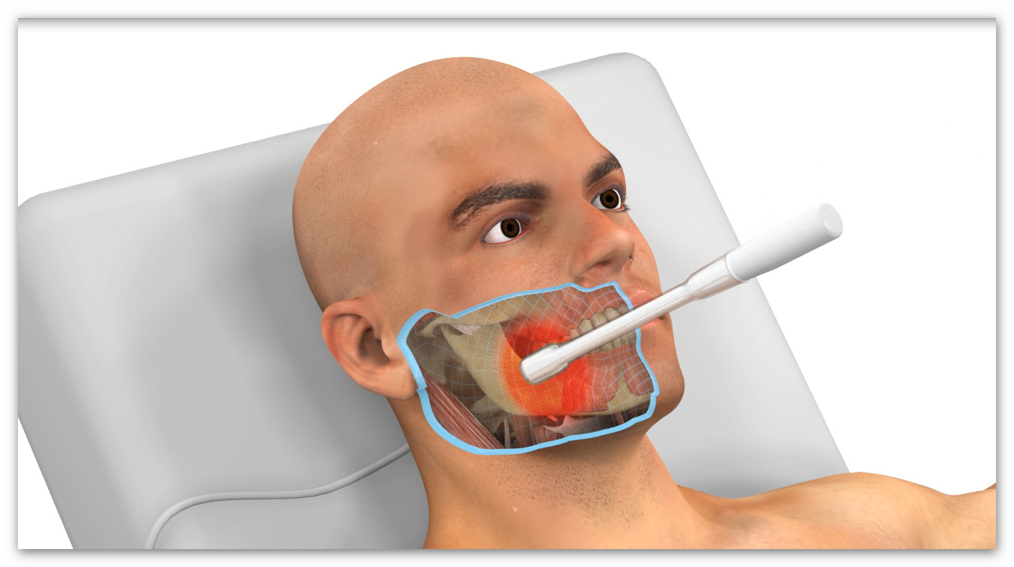 INTRAORAL TECARTHERAPY